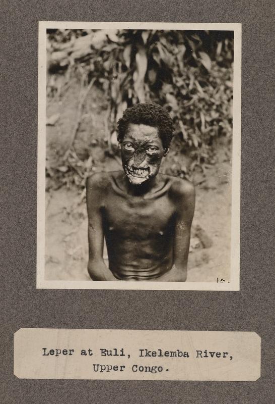 Leper at Euli, Ikelemba River, upper Congo