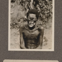 Leper at Euli, Ikelemba River, upper Congo